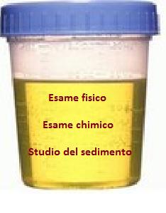 recetas comidas sin acido urico muesli para acido urico cremas naturales para la gota